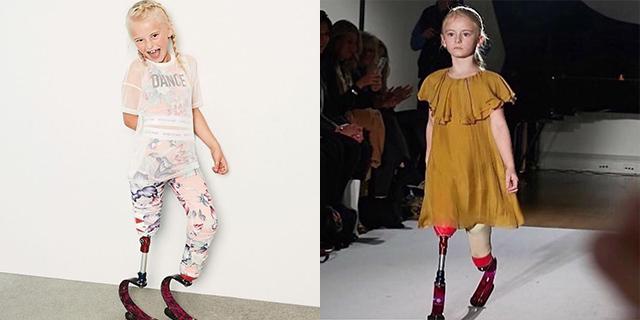 La lezione di vita di Daisy-May Demetre, modella amputata di 8 anni