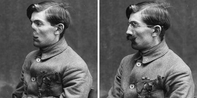 Le affascinanti foto dei veterani mutilati a cui Anna Coleman diede un volto nuovo