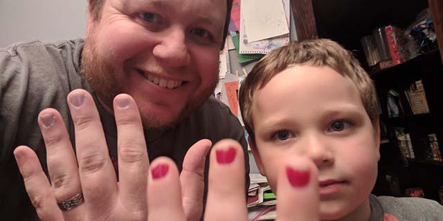 La risposta del papà del bambino bullizzato a scuola per lo smalto sulle unghie