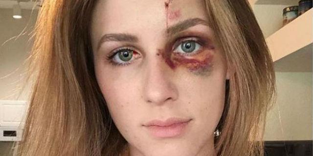 """Melissa Gentz, picchiata dall'ex """"Non sono io a dovermi nascondere e vergognare"""""""