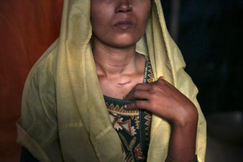 L'inferno dei Rohingya, fra le donne stuprate e i neonati gettati nel fiume