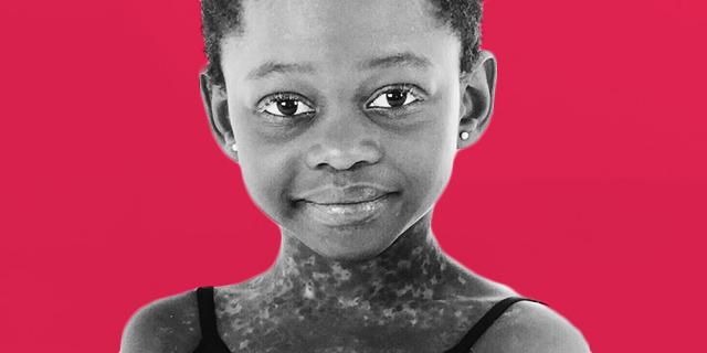 Michaela DePrince, la bambina che moriva di fame ed è diventata una stella