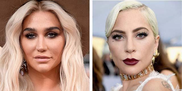 """Vergognatevi di voi stessi"": Lady Gaga in difesa di Kesha"