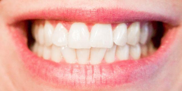 sogni premonitori denti