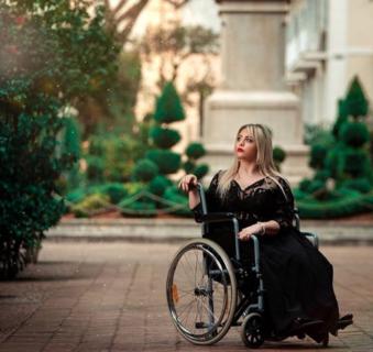 """Benedetta De Luca: """"Non ho sofferto per nulla: voglio mostrare le cicatrici sulle gambe"""""""