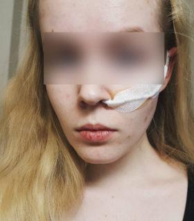 """Noa Pothoven, che si è lasciata morire a 17 anni perché già """"uccisa"""" da uno stupro"""