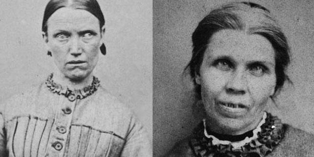 Lobotomia: i devastanti effetti di una pratica che rendeva le persone zombie