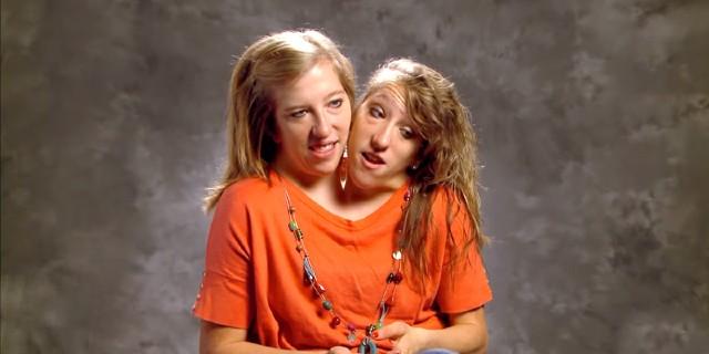 gemelli siamesi