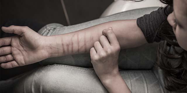 """""""Mi sono autolesionata tutto il corpo ma i vostri sguardi fanno ancora più male"""""""