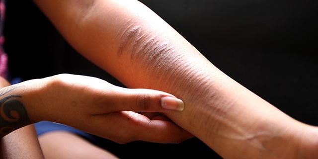 Autolesionismo: quel dolore da mettere a tacere, procurandosi altro dolore