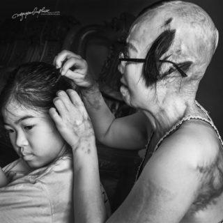 """Huyen, sfigurata con l'acido, che ha il coraggio di restare """"la più bella"""" per la figlia"""