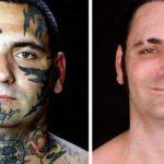 """""""Come e perché ho rimosso i tatuaggi razzisti dal mio volto"""""""