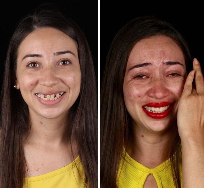 14 prima e dopo dei pazienti poveri del dentista che regala loro un sorriso nuovo