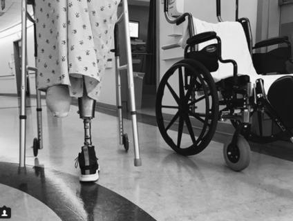 Le gambe d'oro di Lauren, amputate per un assorbente e che ora corrono la maratona