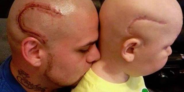 Il papà si era tatuato la stessa cicatrice del figlio, ma Gabe non ce l'ha fatta