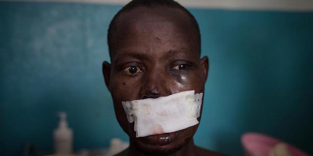 """Medici Senza Frontiere autodenuncia:""""24 casi di molestie o abusi sessuali nel 2017"""""""