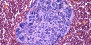 cancro al colon retto