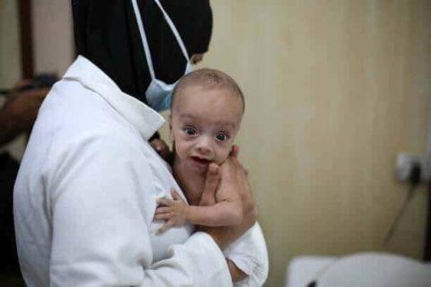 Possiamo decidere di non guardare, ma a Ghouta i bambini stanno morendo