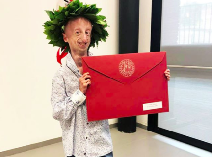 Il segreto di Sammy Basso, più forte della progeria e del suo cuore