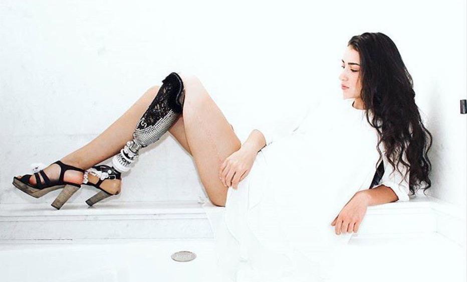 Chi è Chiara Bordi, la Miss con la protesi a una gamba
