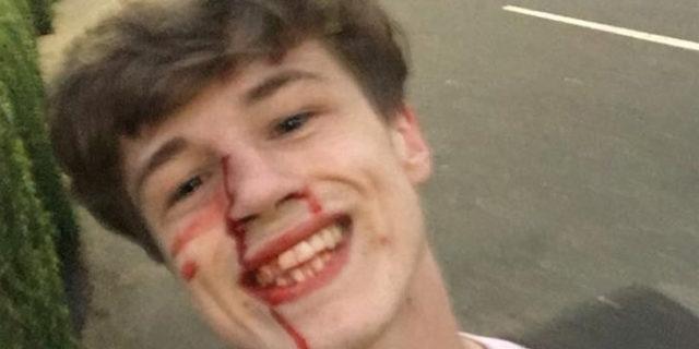 Pestato a sangue perché gay, risponde con un sorriso e queste parole