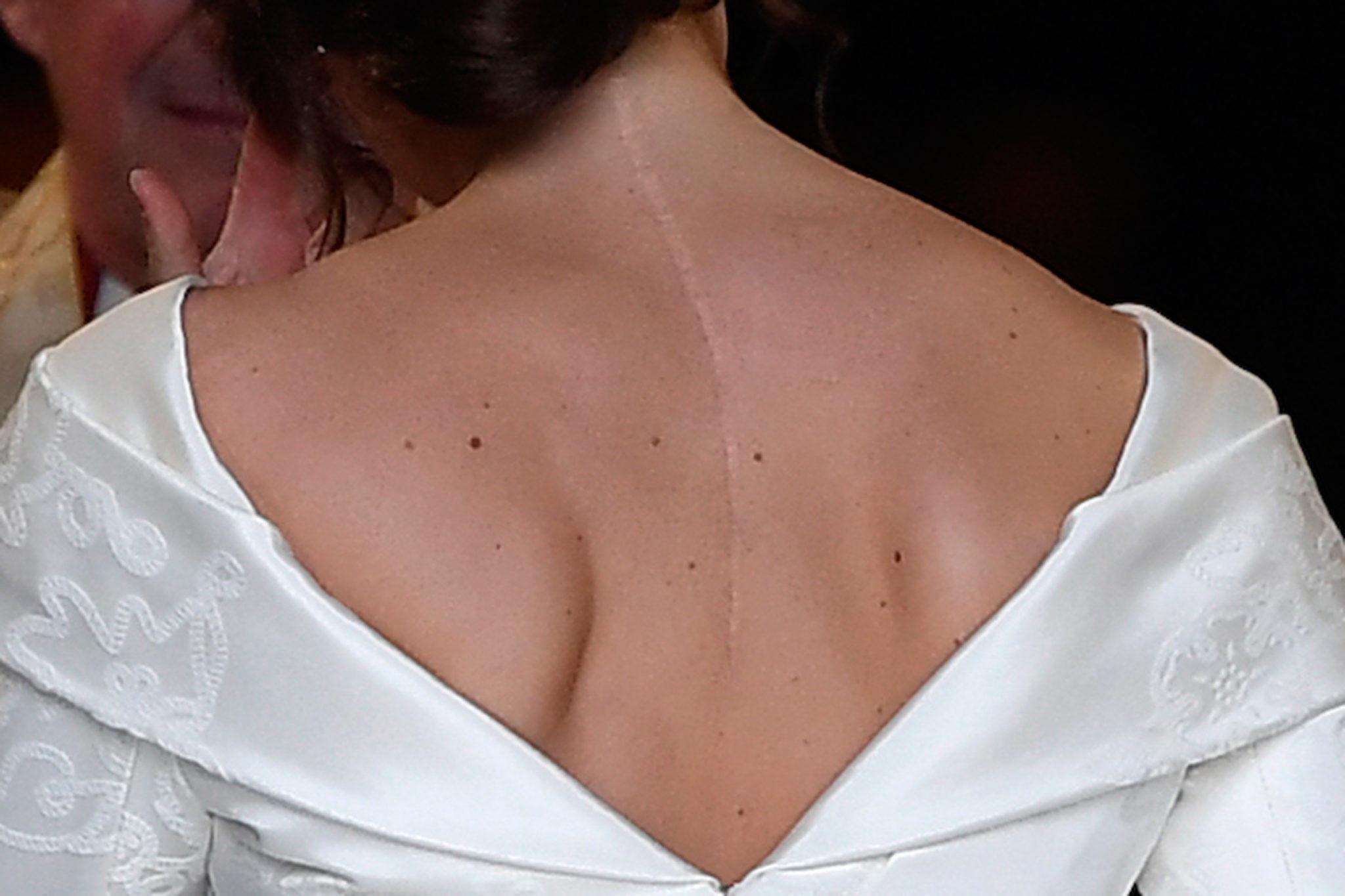 La scelta della principessa Eugenie di mettere in mostra la sua cicatrice