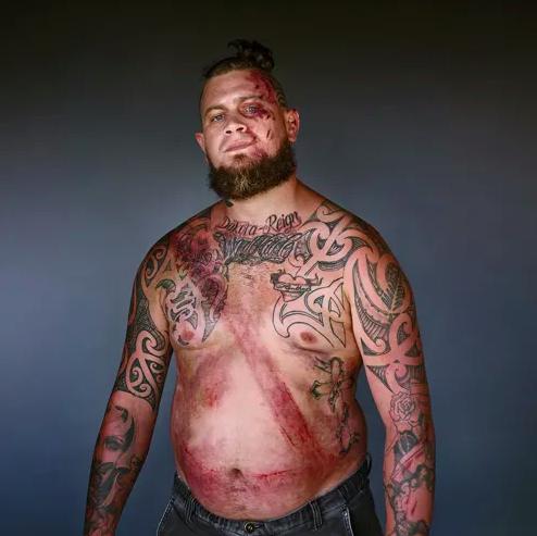 """""""La cintura mi ha salvato"""": 10 immagini che fanno riflettere"""