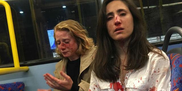 """Picchiate a sangue perché lesbiche: """"volevano ci baciassimo"""""""
