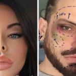 Perché Instagram ha deciso di vietare i filtri effetto lifting / chirurgia plastica