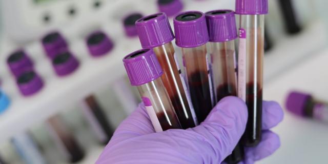 Il coronavirus nei testicoli: lo studio che spiega perché muoiono più gli uomini