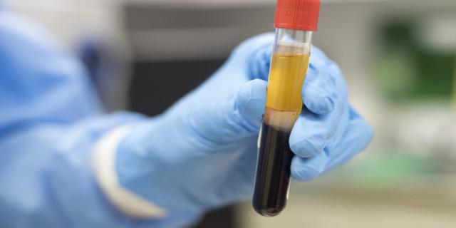 Coronavirus, terapia al plasma dei guariti: il Cotugno vuole sperimentarla