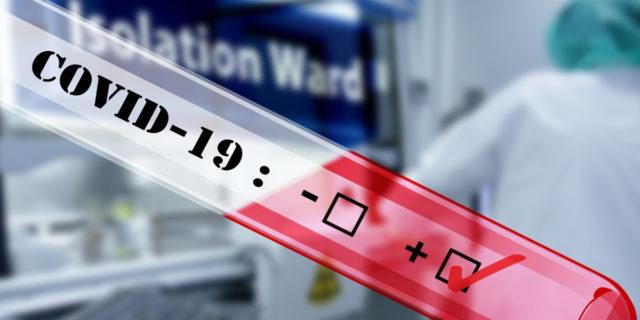 Coronavirus, al via i test sierologici in molte regioni: a cosa servono?