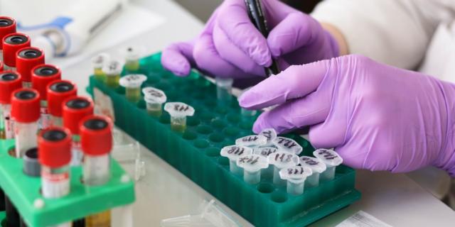 Ricercatori italiani scoprono 17 anticorpi che uccidono il coronavirus