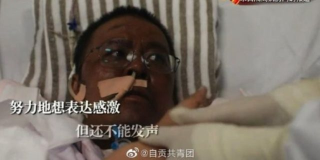 Cina, morto uno dei due medici che si erano risvegliati con la pelle scura