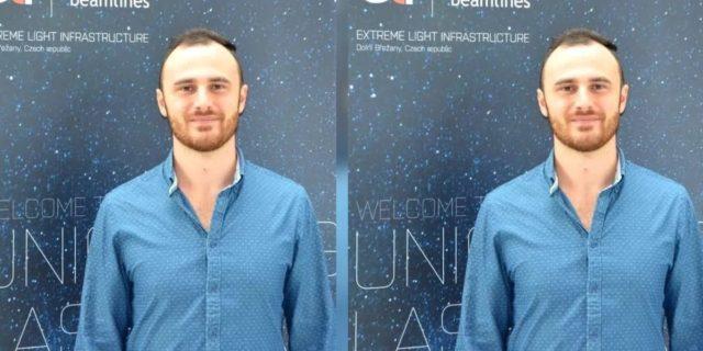 """Tumori, un innovativo macchinario italiano promette di """"bruciarli"""""""