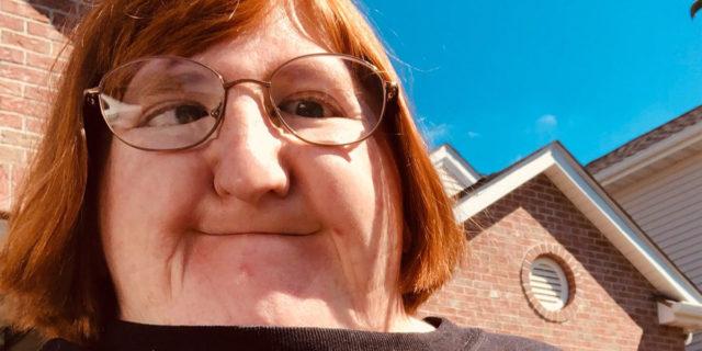 La risposta di Melissa Blake a chi usa la sua faccia per far piangere i propri figli