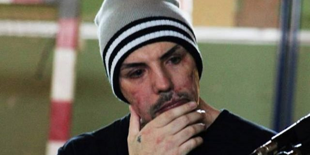 Amore Criminale: l'incubo di William Pezzulo, sfregiato con l'acido dalla sua ex