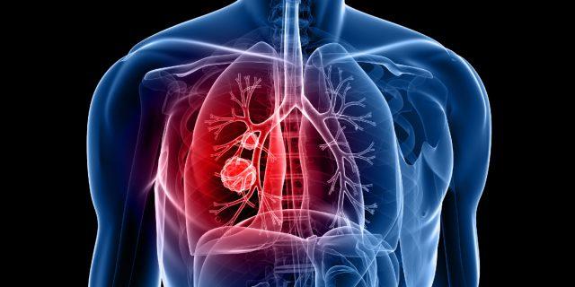 Tumore ai polmoni nei non fumatori: l'importante scoperta di Maria Teresa Landi