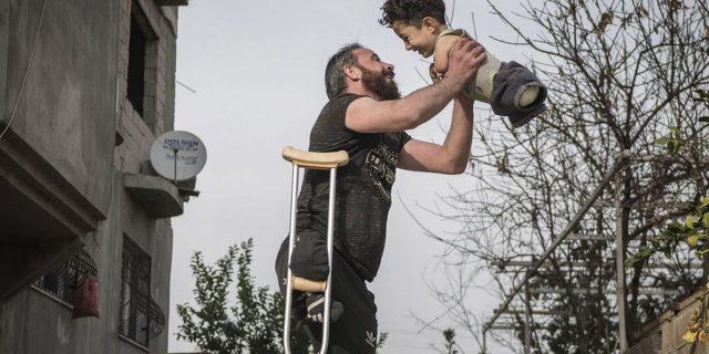 L'abbraccio tra padre e figlio senza arti: il dramma siriano nella foto di Aslan