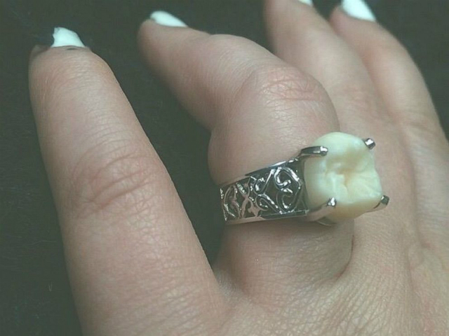 anello fidanzamento dente