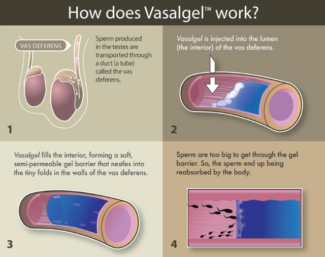 come funziona vasalgel