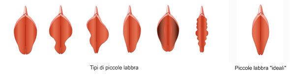 Labioplastica e vaginoplastica ringiovanimento vaginale