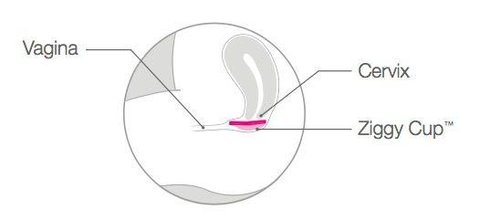 La prima coppetta mestruale che può essere usata anche durante il sesso