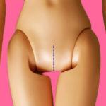 Quel fenomeno in crescita delle bambine che si rifanno la vagina