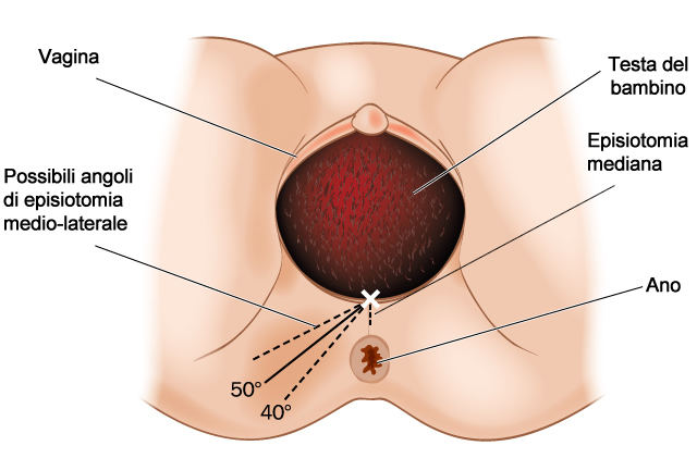 episiotomia parto