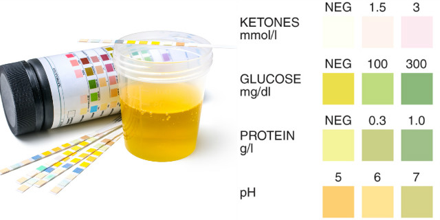 Esame delle urine in gravidanza