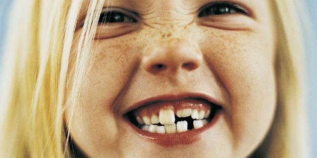 Come curare al meglio i denti da latte