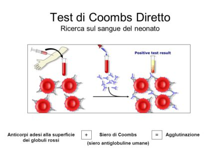 test di coombs diretto