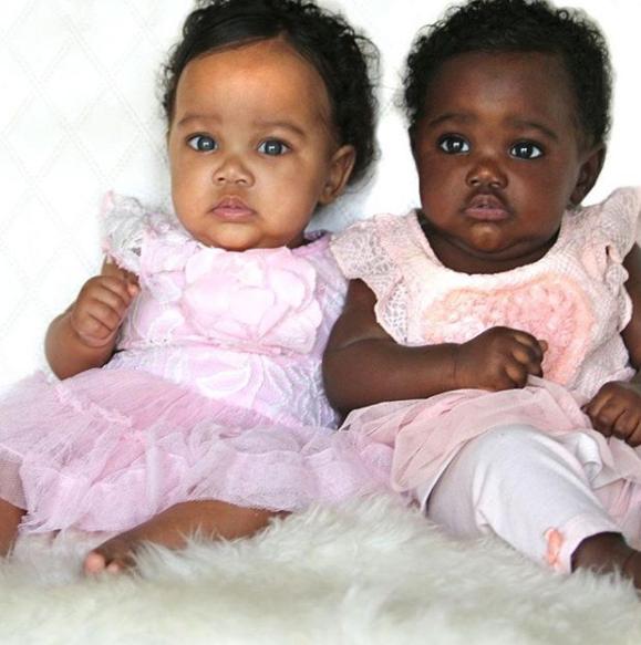 Le gemelle di colore diverso: la bellezza nera in tutte le sue sfumature