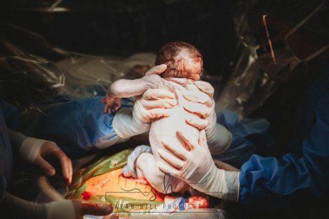 Gli scatti del parto cesareo di Emily, che ha estratto il bambino dalla sua pancia